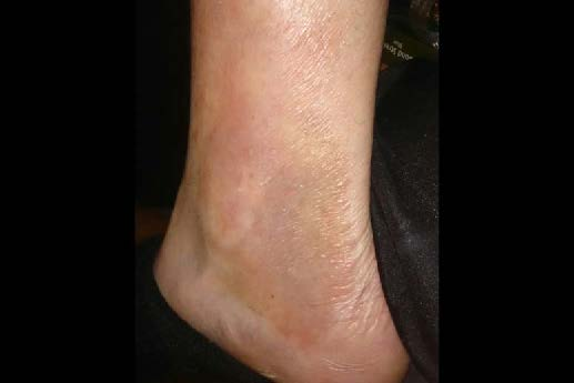 Psoriasis on ankle after Elektra Magnesium Cream Herbal treatment