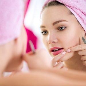 Pimples-acne
